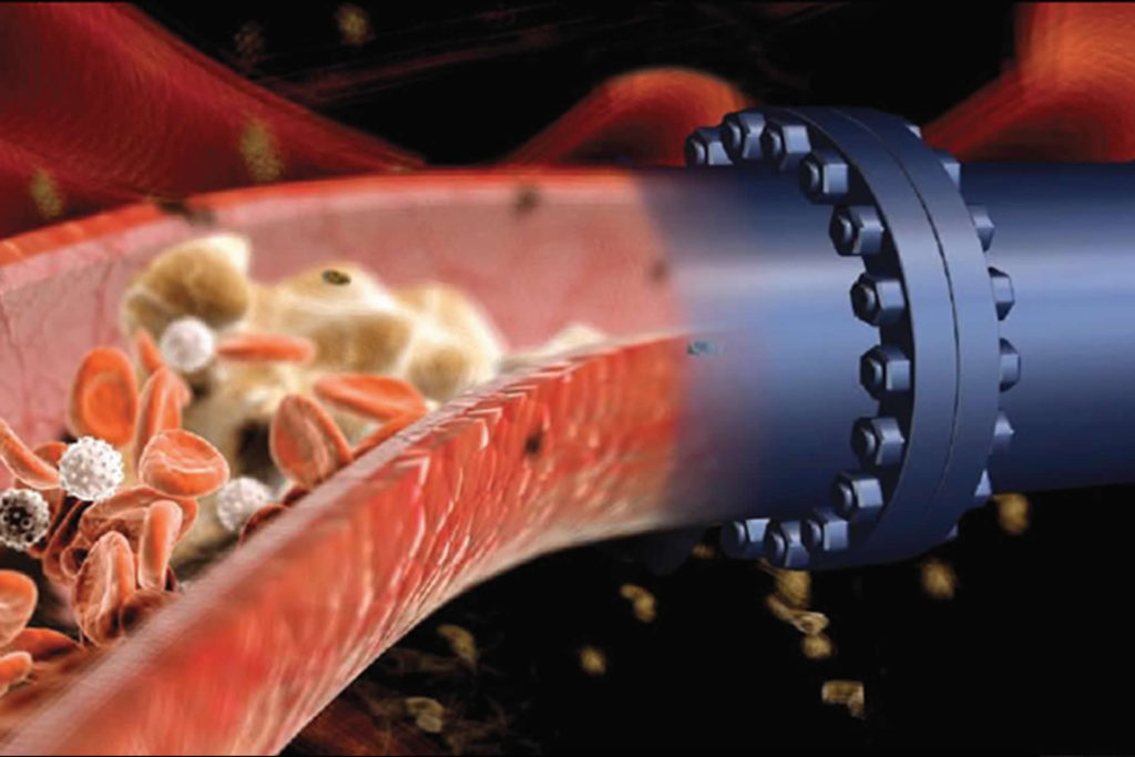 a blood vessel merges with an oilfield pipe
